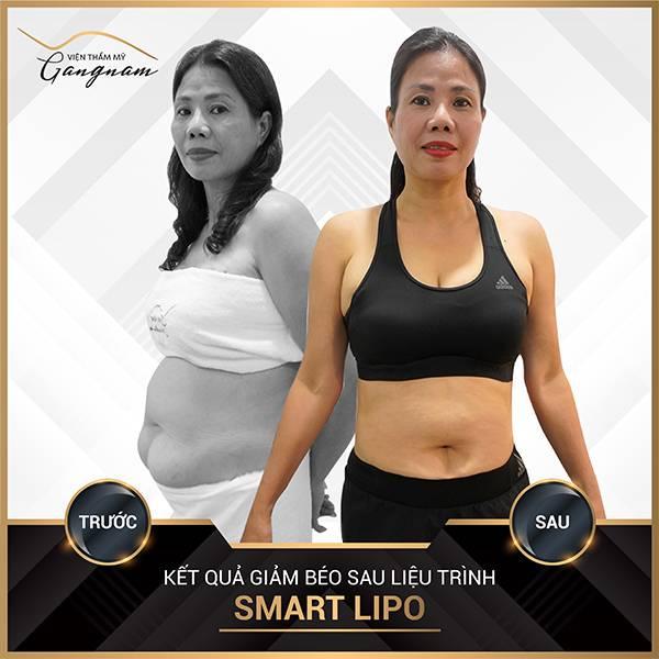 Cô khách U60 thực hiện Smart Lipo ở vùng bắp tay và bụng và chỉ sau 1 tháng đã giảm được 5kg mỡ thừa