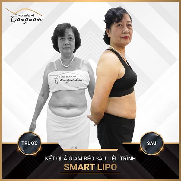 Cô khách sở hữu vóc dáng mơ ước không có mỡ thừa chỉ sau 1 lần thực hiện giảm mỡ Smart Lipo