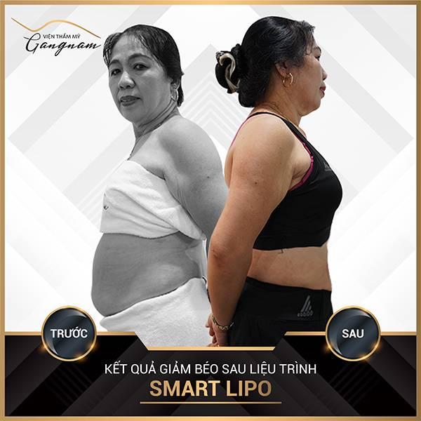 Smart Lipo hiệu quả gấp 20 lần phương pháp ăn chuối giảm mỡ bụng
