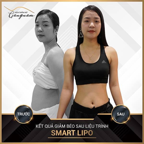 Chị khách sở hữu vóc dáng thon gọn hơn rất nhiều sau khi giảm mỡ toàn thân nhanh nhất bằng công nghệ Smart Lipo