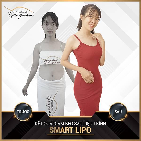 """Chị Linh: """"Tôi chỉ có ước mơ được mặc váy body, và Smart Lipo đã giúp tôi thực hiện điều đó."""""""