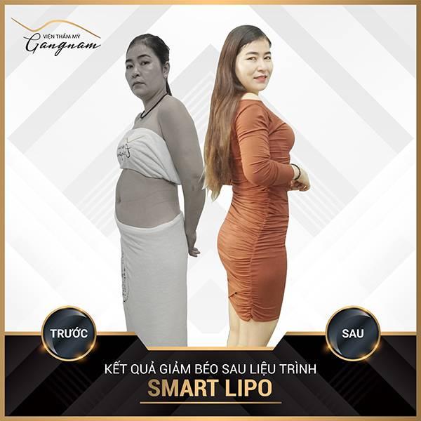 Không biết giảm mỡ bụng bằng cách nào chị khách đã tìm đến giảm béo Smart Lipo