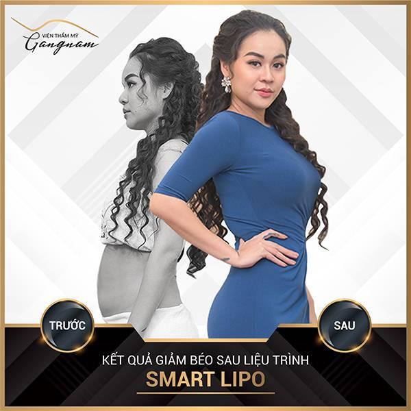 Ca sĩ Vũ Hạnh Nguyên là minh chứng điển hình cho việc giảm mỡ bụng trên cho nữ khi cô nhanh chóng sau gần 1 tháng cấy tinh chất Smart Lipo