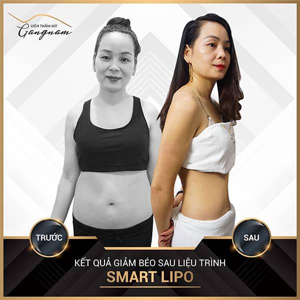 Cô khách đã giảm 25 cm vòng 2 chỉ sau 1 lần trị liệu giảm béo Smart Lipo tại Mega Gangnam