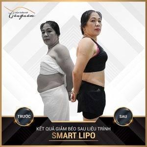 Cô khách đã đẩy lùi mỡ thừa sau liệu trình giảm mỡ toàn thân trong 1 tuần Smart Lipo
