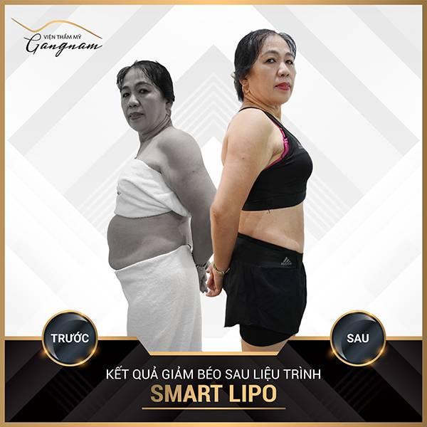 Khách hàng sử dụng dịch vụ giảm mỡ bụng Smart Lipo tại Mega Gangnam