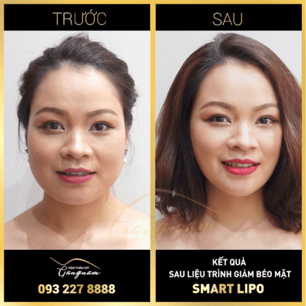 Chị Hồng Loan (36 tuổi) hoàn toàn bất ngờ với kết quả giảm béo mặt Smart Lipo