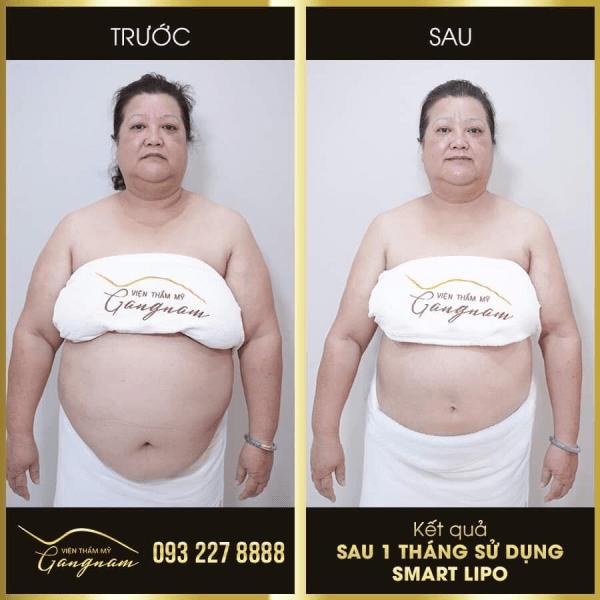 vùng bụng giảm hơn 46 cm sau 1 tháng sử dụng Smart Lipo
