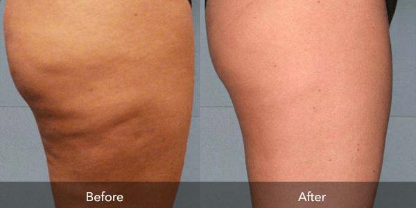 Kết quả sau 1 liệu trình sử dụng cách giảm mỡ mông bằng công nghệ Smart Lipo