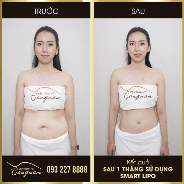 Chị Ngọc Anh giảm thành công 6 kg chỉ sau 1 tháng thực hiện Smart Lipo