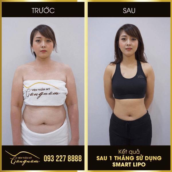 Chị Thuý giảm 40cm vòng bụng chỉ sau 1 tháng thực hiện Smart Lipo.