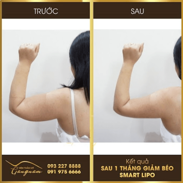 Chị Thanh giảm 15 cm vùng bắp tay sau 1 tháng mà không bị tăng cơ nhờ Smart Lipo
