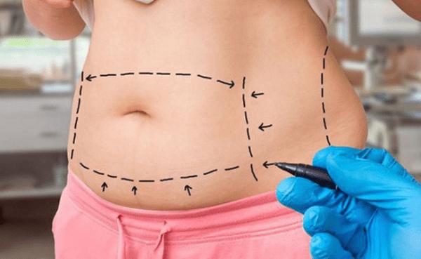 Phẫu thuật bóc mỡ bụng được thực hiện nhanh chóng nhưng dễ để lại sẹo lớn