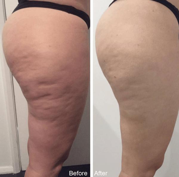 Smart Lipo là cách giảm mỡ mông nam, nữ có thể loại bỏ gần như toàn bộ mỡ thừa, điều trị da sần vỏ cam do tích mỡ