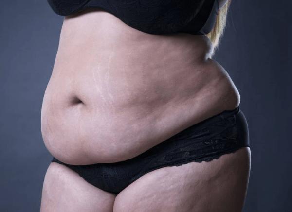 Mỡ bụng - nỗi ám ảnh của các chị em và làm thế nào để giảm mỡ bụng nhanh nhất?