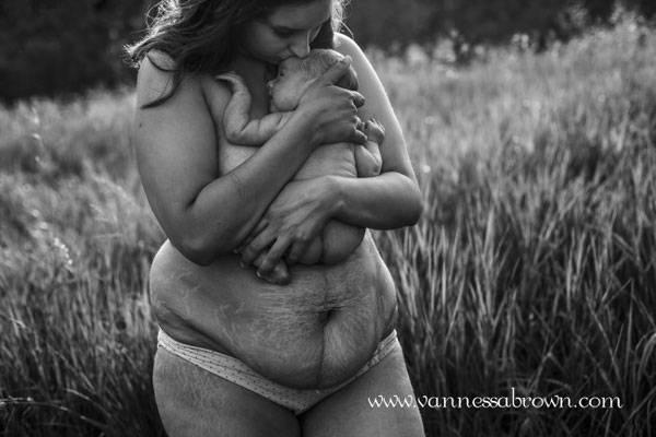 Làm thế nào để giảm mỡ bụng sau sinh 7 tháng hiệu quả nhất?