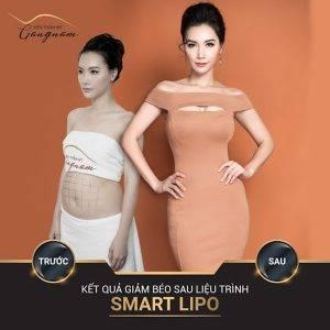MC Minh Hà sở hữu dáng ngà sau khi giảm mỡ toàn thân với công nghệ Smart Lipo