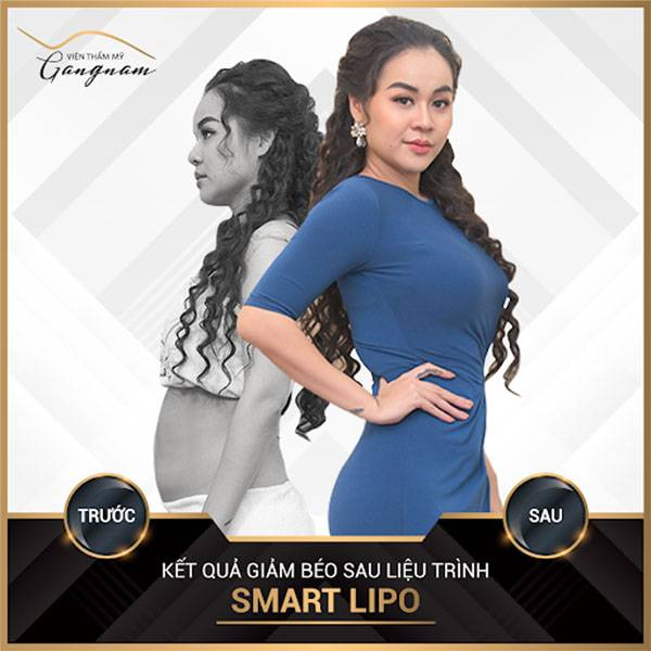 """""""Yêu nữ hàng hiệu"""" sau 1 tháng sử dụng công nghệ Smart Lipo để giảm béo toàn thân: giảm 5 kg & 25 cm vùng bụng."""