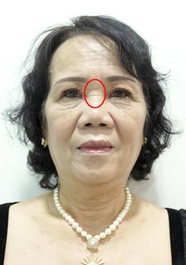 Nếp nhăn ngang sống mũi khiến phụ nữ mất tự tin khi nói chuyện và ngại cười