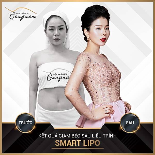 Ca sĩ Lệ Quyên giảm 18cm vòng 2 sau khi sử dụng liệu trình giảm béo Smart Lipo tại Mega Gangnam