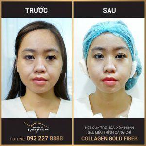 Chị Nguyễn Mai Hoa sau 1 giờ căng chỉ collagen vàng Collagen Gold Fiber tại Mega Gangnam