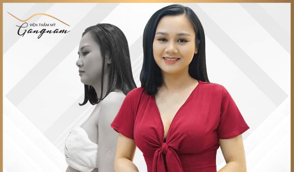 Nữ nhân viên văn phòng hóa hot girl công sở sau khi giảm 15 cm vòng bụng trong 10 ngày