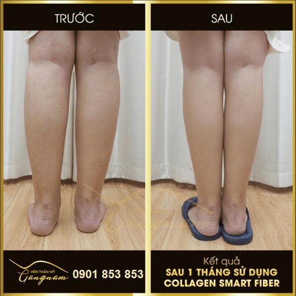 Giảm béo bắp chân hiệu quả