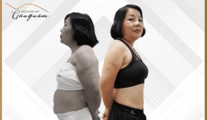 U50 tràn đầy xuân sắc sau liệu trình giảm béo công nghệ cao smart lipo