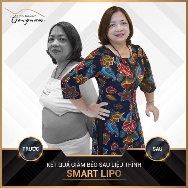 Chị Phượng trẻ trung, rạng rỡ khi giảm béo thành công với Smart Lipo.