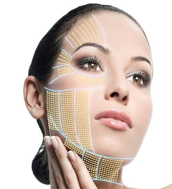 Sợi chỉ sau khi được cấy vào da sẽ tạo thành một mạng lưới nâng đỡ, kéo cao cơ chùng,...