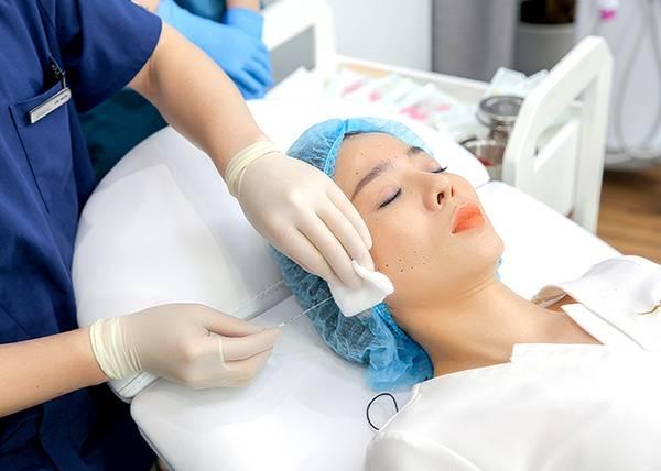 Thực hiện trẻ hóa da bằng chỉ hoàn toàn không đau - không xâm lấn