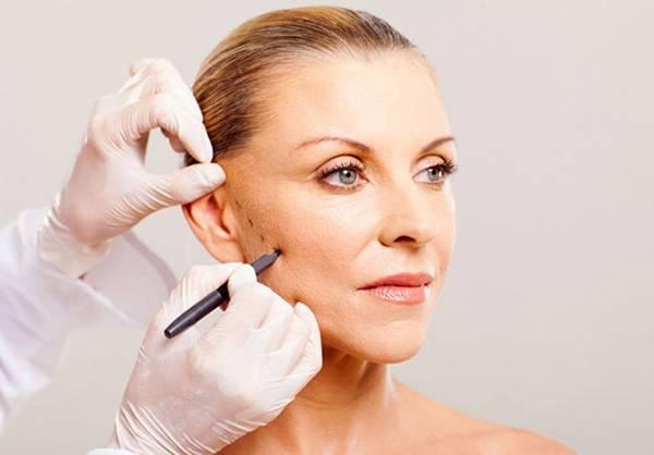 Thực hiện phẫu thuật căng da mặt bằng dao kéo trên gương mặt tiềm ẩn nhiều rủi ro
