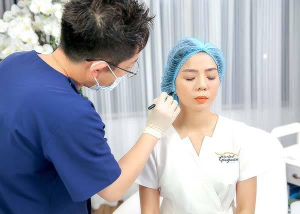 Quy trình căng da mặt bằng chỉ tại Mega Gangnam - Bước 3