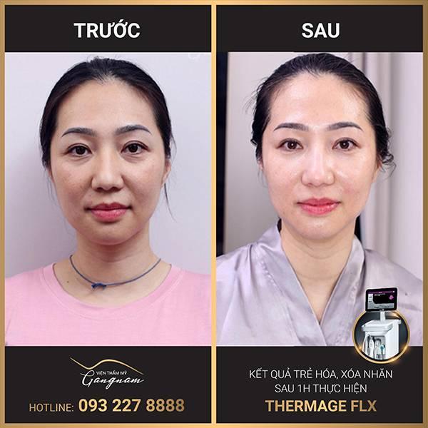 Khách hàng sở hữu làn da căng bóng, mịn màng sau khi trẻ hóa da bằng Thermage FLX