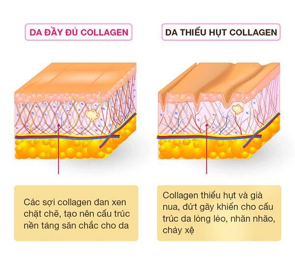 Collagen có vai trò quan trọng với làn da