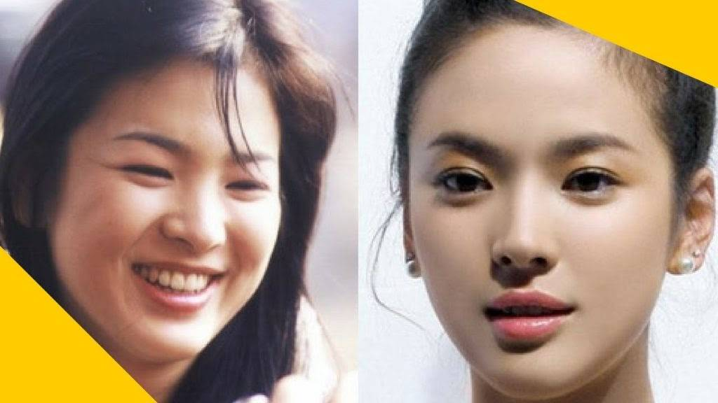 Giảm mỡ mặt để có một gương mặt cân đối, hoàn hảo hơn