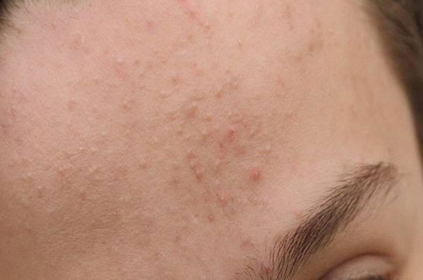 Nguyên nhân do đâu da mặt khô sần
