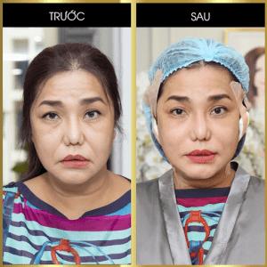 Hình ảnh Cindy Thái Tài sau khi thực hiện căng da bằng chỉ Collagen Gold Fiber