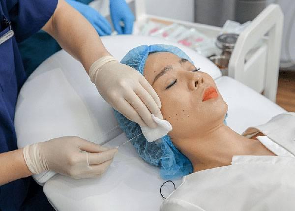Căng chỉ Collagen Gold Fiber cho hiệu quả căng da trên 10 năm