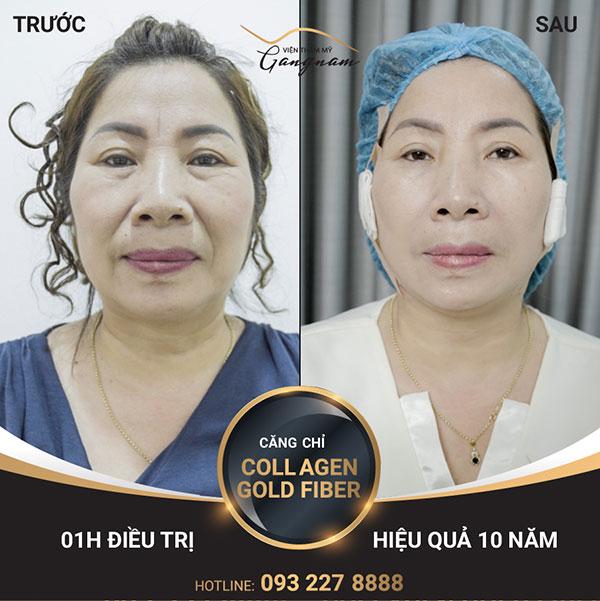 Collagen Gold Fiber cải thiện nếp nhăn vùng mắt rõ rệt