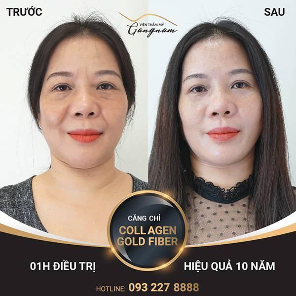 Kết quả sử dụng công nghệ Collagen Gold Fiber
