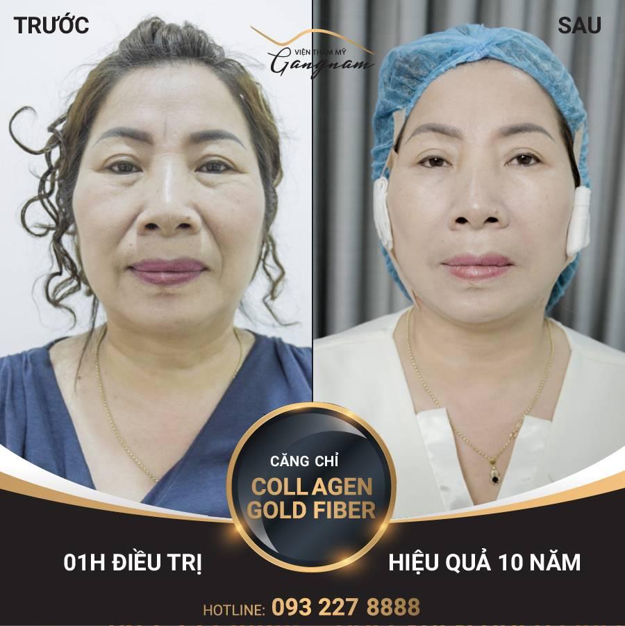 Kết quả sau 1 lần căng da mặt bằng chỉ Collagen Gold Fiber