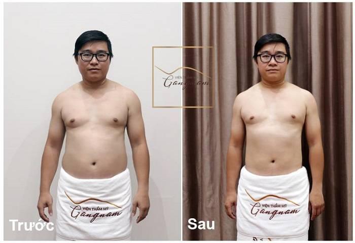 Khách hàng giảm béo bụng bằng Smart Lipo