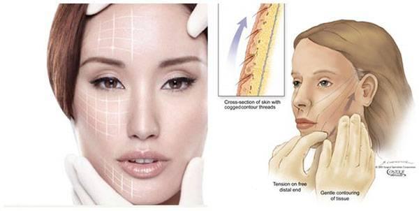 Phương pháp căng chỉ collagen vùng cằm