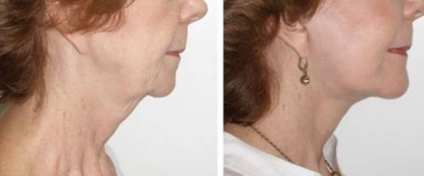 Sự khác biệt trước và sau khi căng chỉ collagen vùng cổ