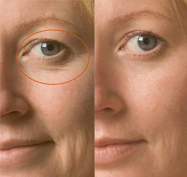 Căng da vùng mắt bằng chỉ collagen là phương pháp được các chuyên gia thẩm mỹ đầu ngành đánh giá cao