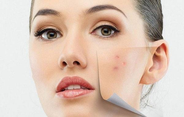 Chăm sóc da sau khi nặn mụn giúp da nhanh lành, không để lại sẹo