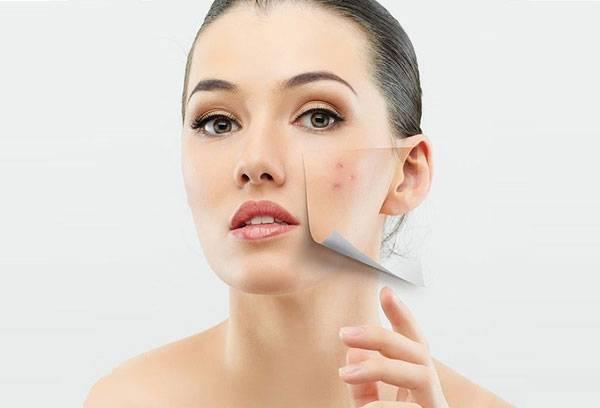 Nguyên nhân gây mụn trên da