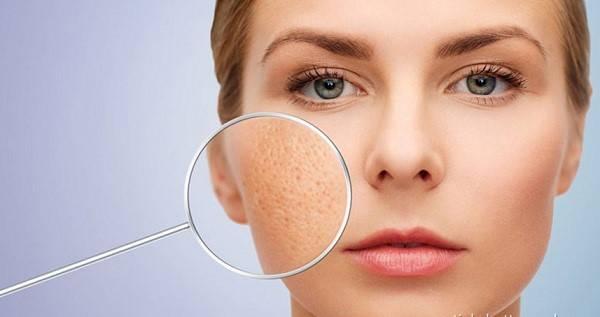 Lỗ chân lông to xuất hiện trên da do nhiều nguyên nhân