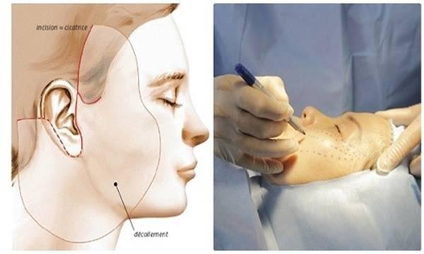 Có nên nâng cơ mặt không? Nâng cơ mặt phẫu thuật để lại nhiều biến chứng cũng như rủi ro